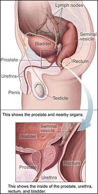 Лечебный секс от хронического простатита